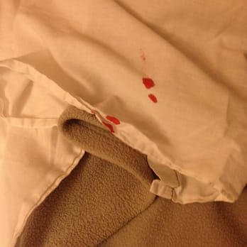 Photo Of Motel 6 Harbor City Ca United States Bloodstain On