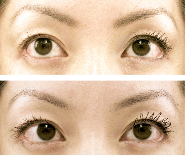 d2ea80f05eb Results from AQ Lash, eyelash enhancement, sold here at Lipo Light ...