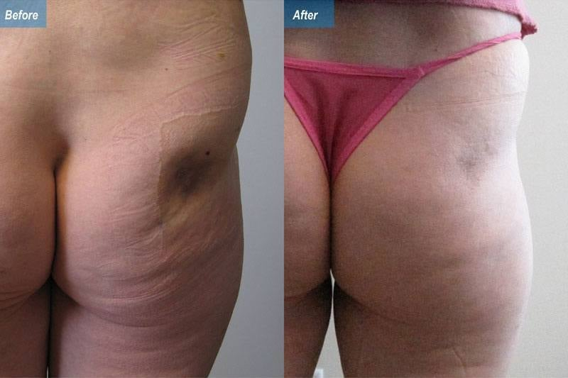 steroid skin atrophy treatment