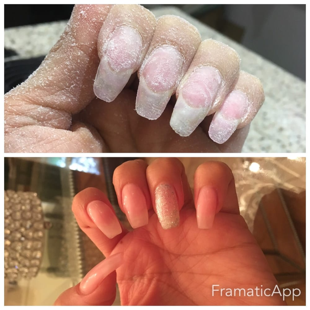 nails after taking off few fills of gel. I haven\'t seen my nails in ...