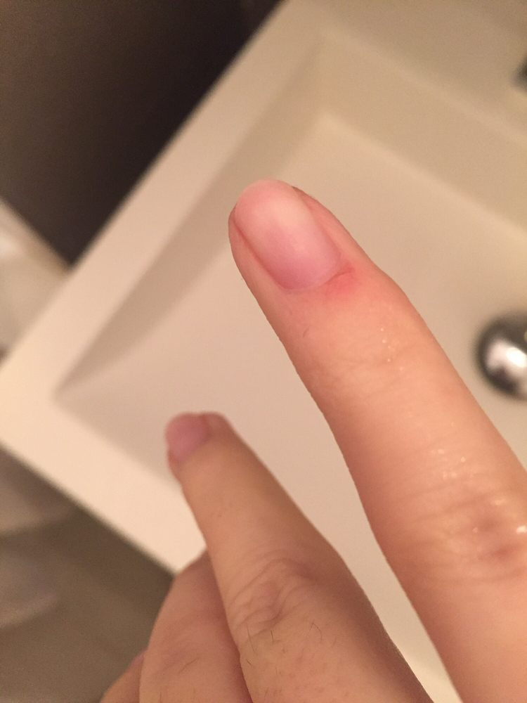 Cuticle damage after gel manicure removal - Yelp