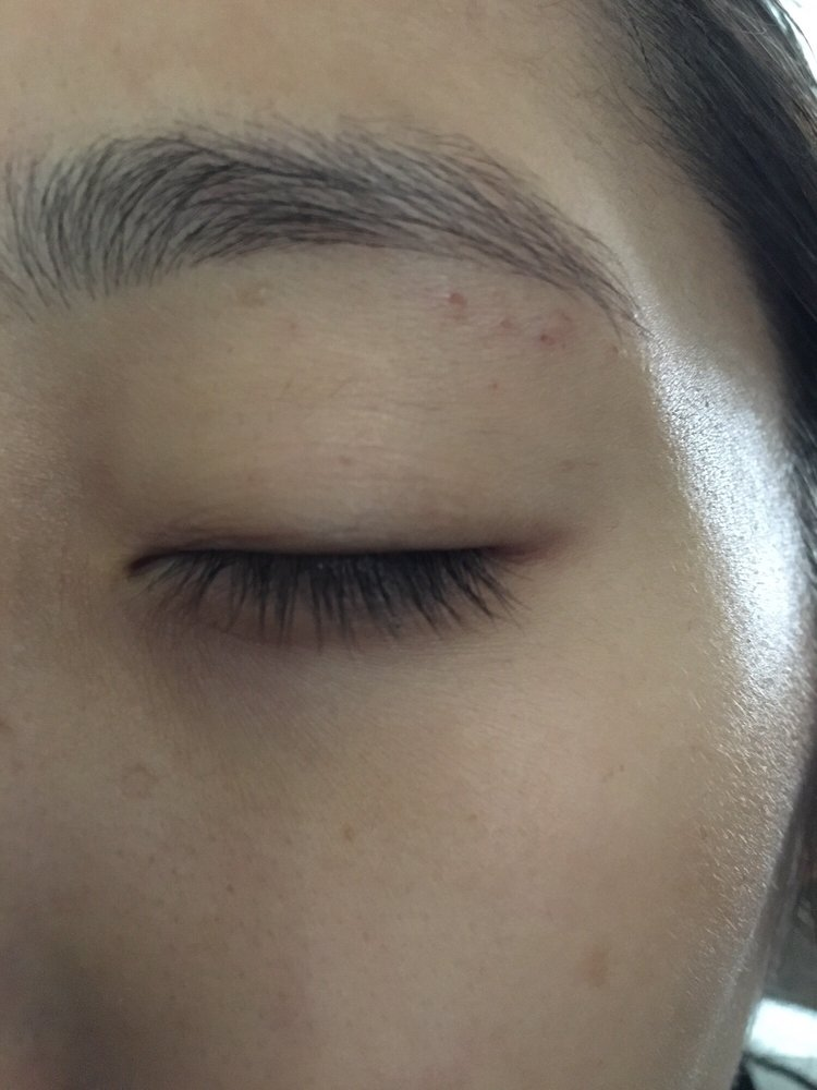 The Cuts And Scabs Under My Brow Are From The Esthetician Who Did My