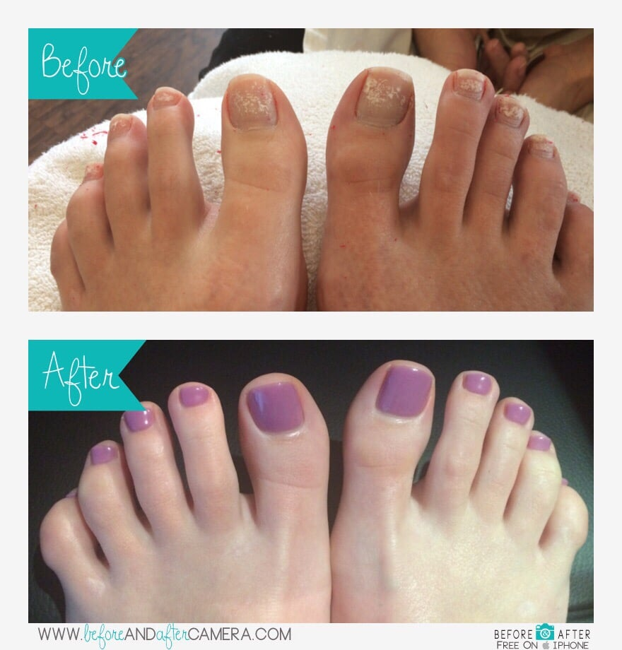 Photo Of Manifique Spa Denver Co United States Gel Pedicure Before