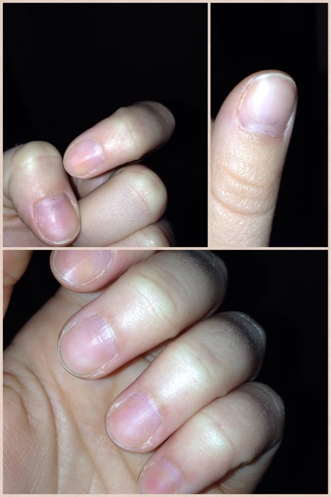 Jacked up nails staring to turn yellow! - Yelp
