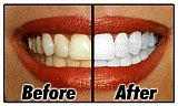 My Tooth Spa General & Cosmetic Dentistry - Fair Oaks | 5060 Sunrise Blvd Ste A, Fair Oaks, CA, 95628 | +1 (916) 605-2566