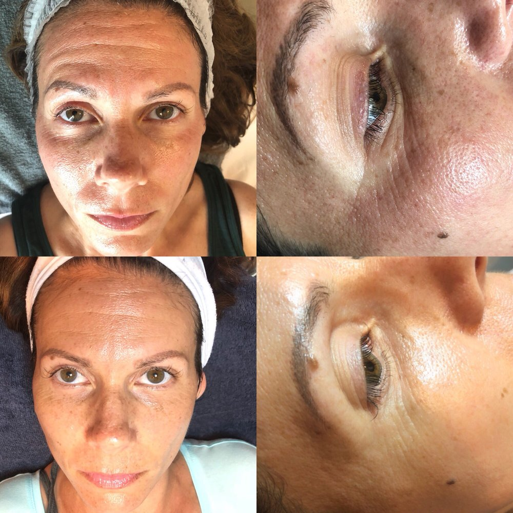 Microneedling after 3 weeks - Yelp