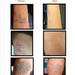 Removing Barriers Tattoo Removal - 16 Photos & 14 Reviews - Tattoo ...
