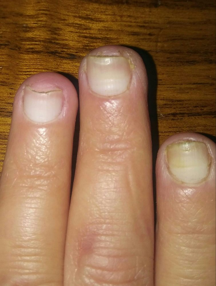 Nail fungus from this nail salon after 1 month of treatment ...