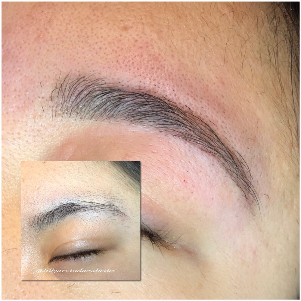 Lilly Arvind aesthetics: 700 Frederick Rd, Catonsville, MD