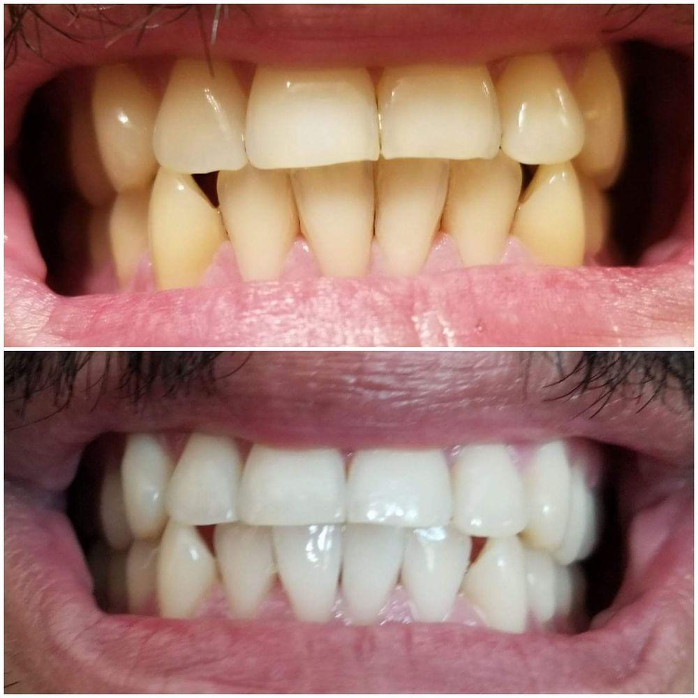 Otay Lakes Dental Group
