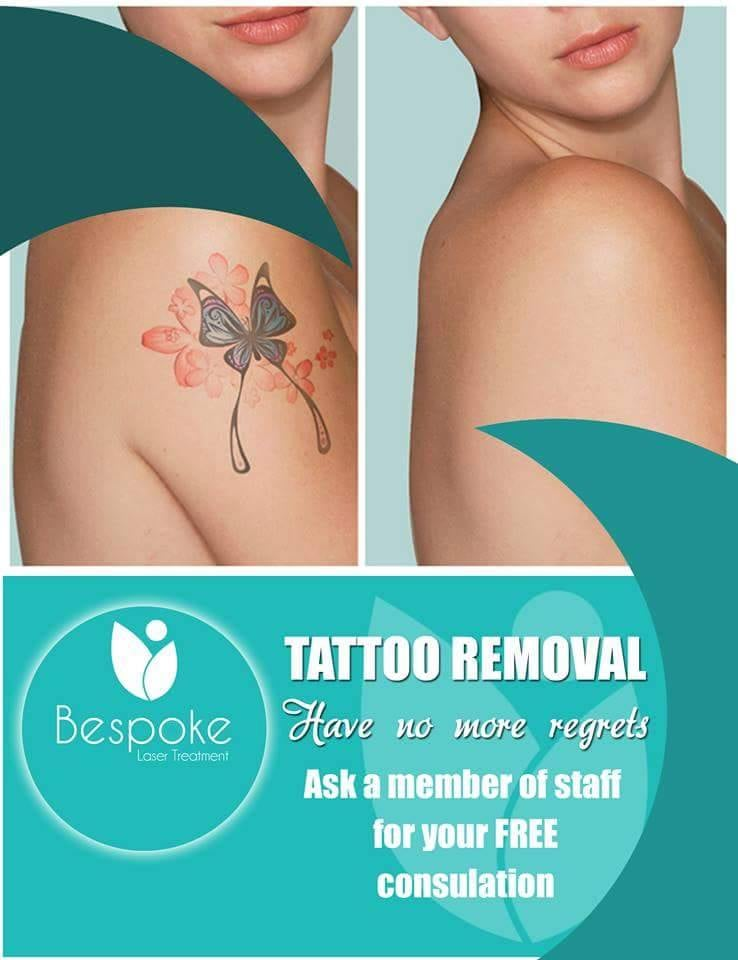 Laser Tattoo Removal Poster Now You No Longer Have To Keep
