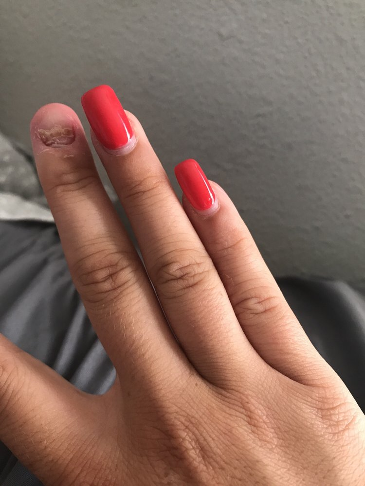 5 months of waiting for my nail bed to grow back because the acrylic ...