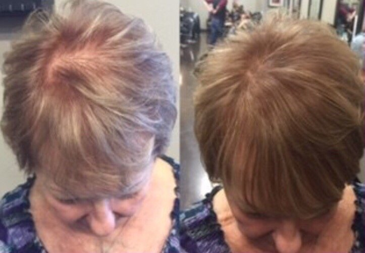 Babe Fusion Extensions Used To Fill In Age Related Thinning Hair Yelp
