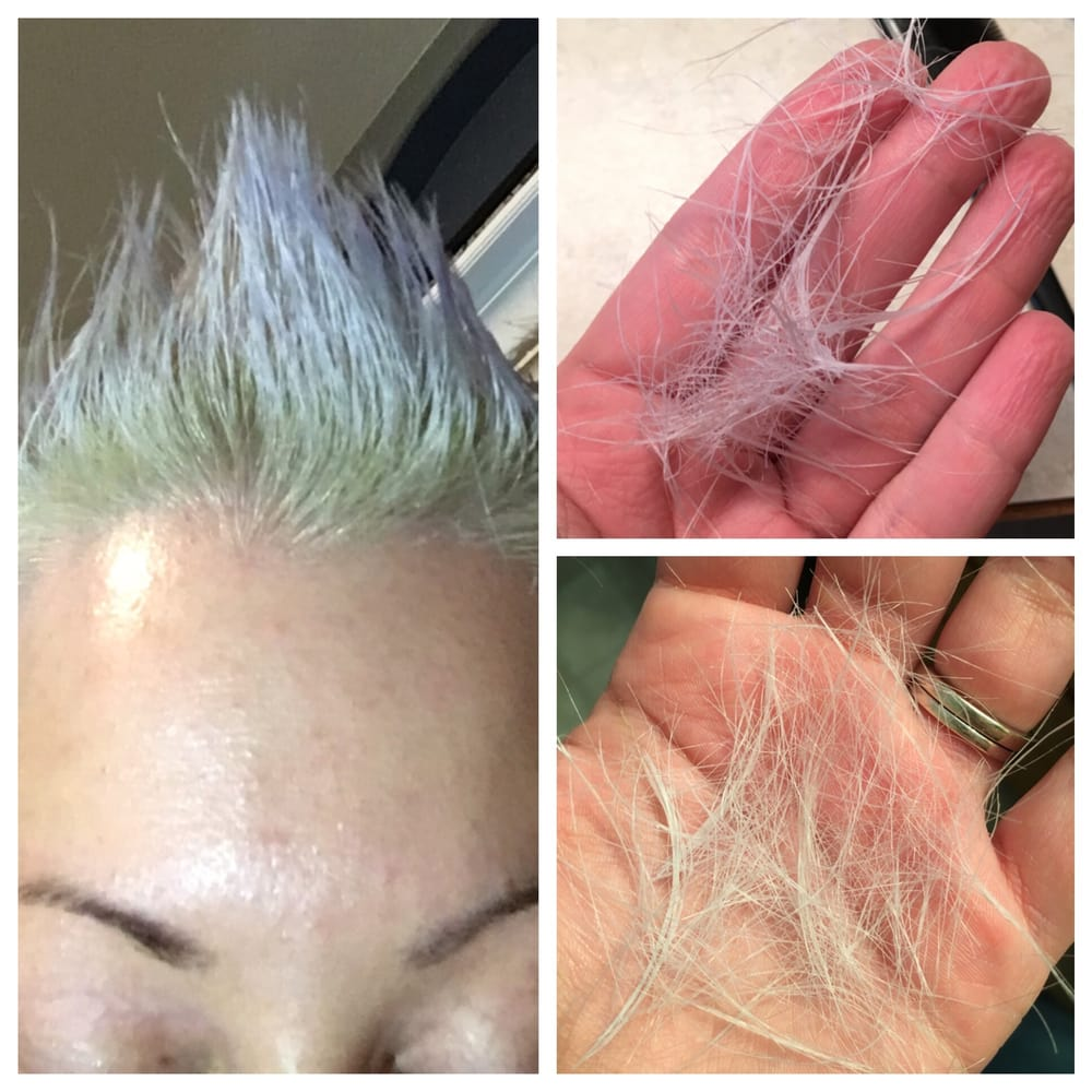 Falling Out The Hair Root From