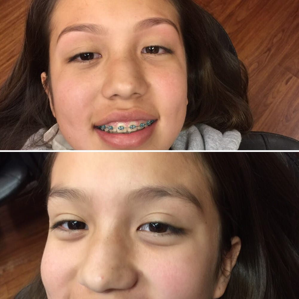 First Time Getting Eyebrows Done Before And After By Malini Yelp