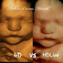 mothers precious moments 4d hd ultrasound cherished memories