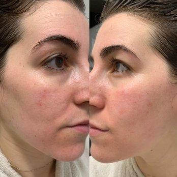 BHSkin Dermatology - Encino Tarzana - 11 Photos & 55 Reviews