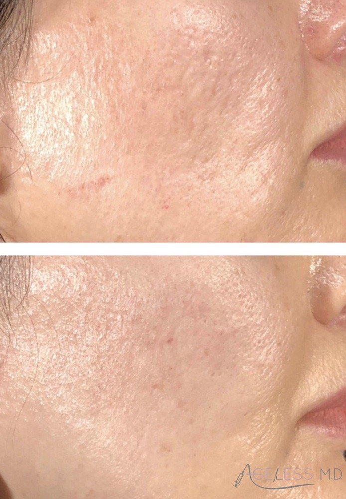 Bellafill with subcision can lift an entire cheek as well as smooth