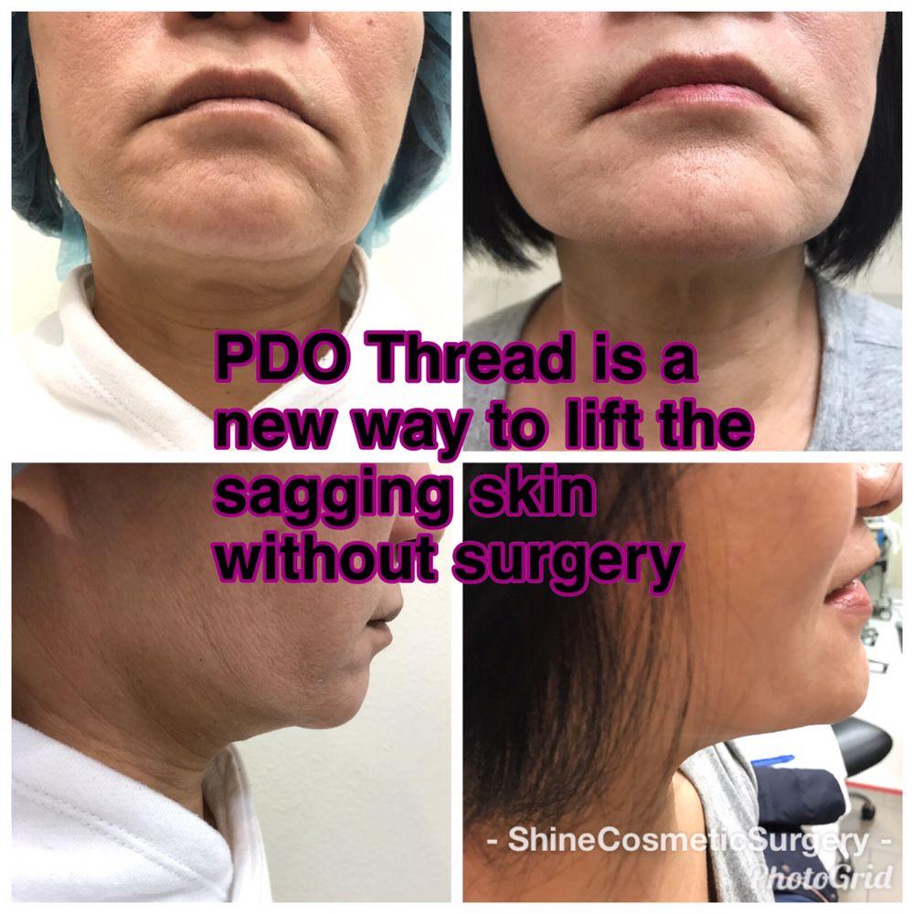 Shine Cosmetic Surgery