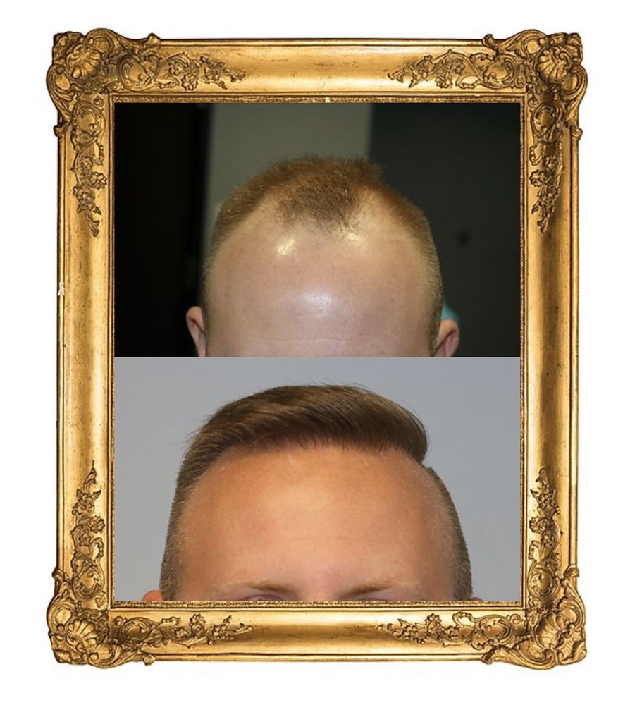PANINE, MD - Chicago Hair Transplant Clinic: 875 Michigan Ave, Chicago, IL