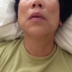 When a woman faints during orgasm