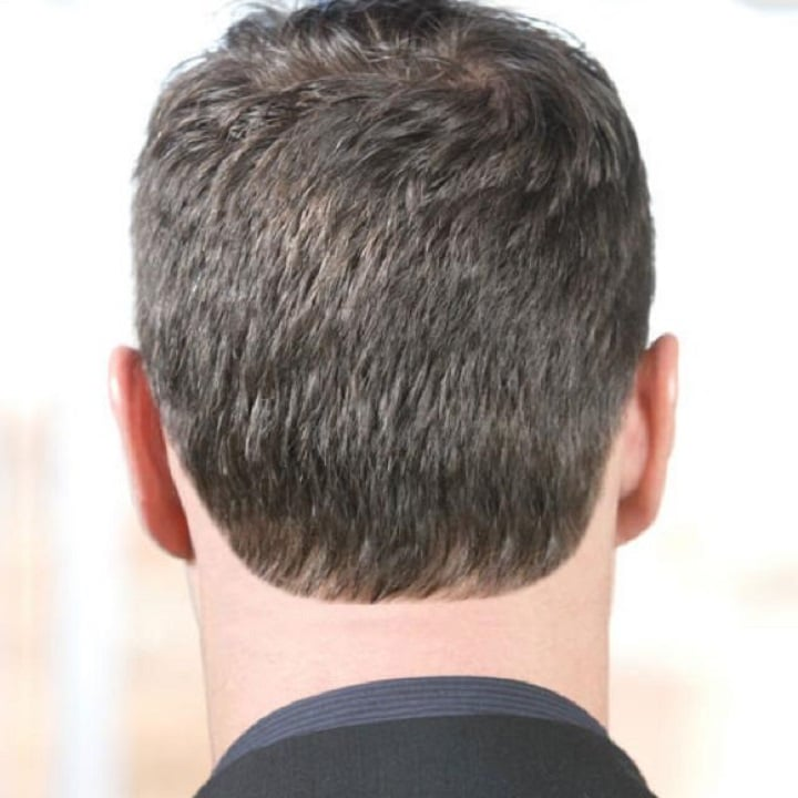 shape the nape of your neck and make your hairline permanent, Cephalic Vein