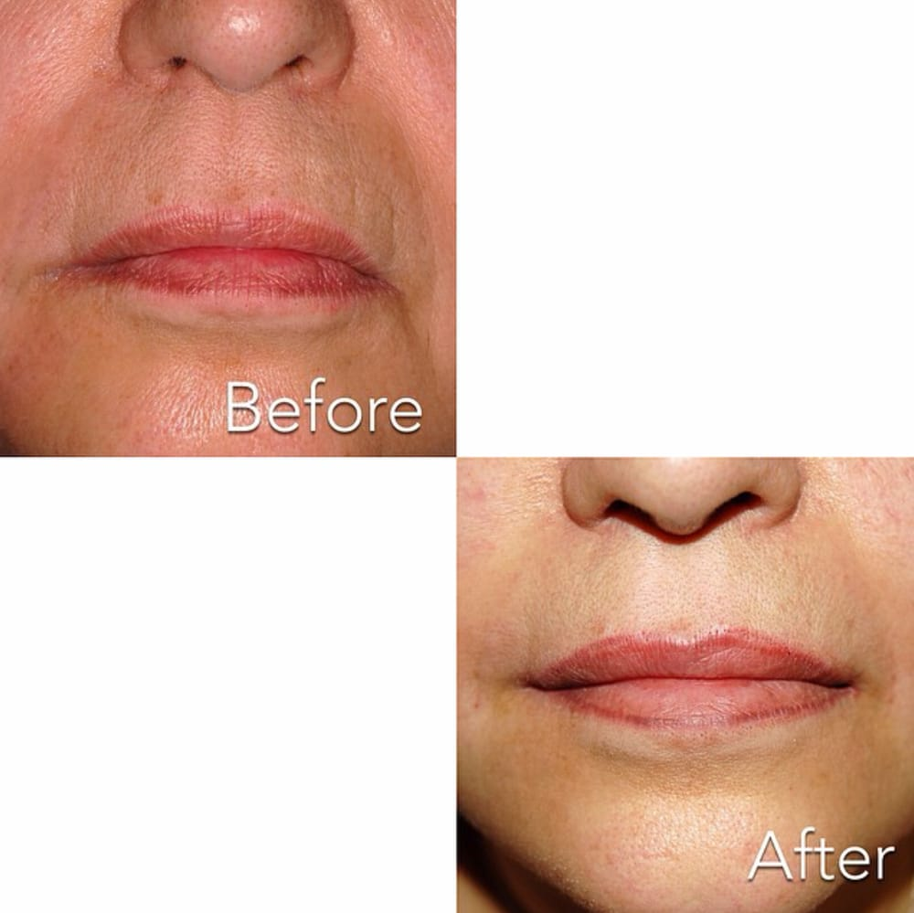 Get rid of smoker lines, deep smile lines, a droopy face