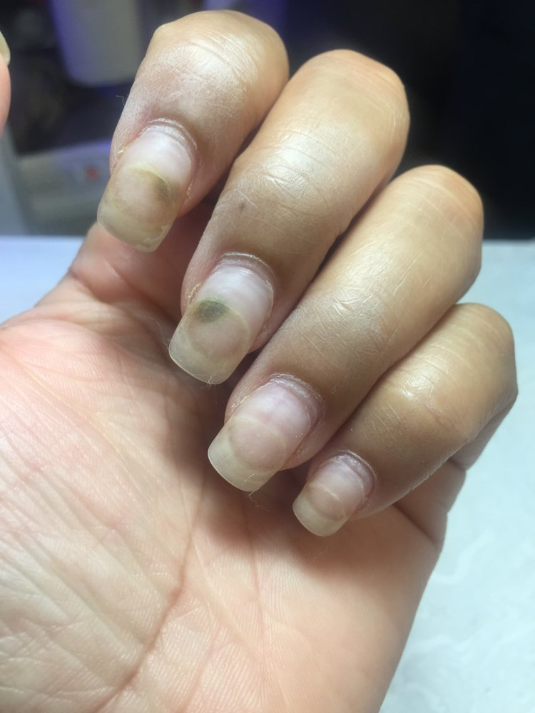 Acrylic wasn\'t applied properly causing water to seep between my ...