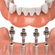 Affordable Dentures - 22 Reviews - General Dentistry - 1859