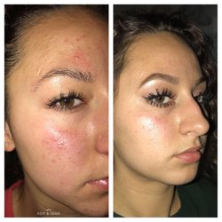 Everygirl Skincare and Acne Clinic - 18 fotos y 43 reseñas