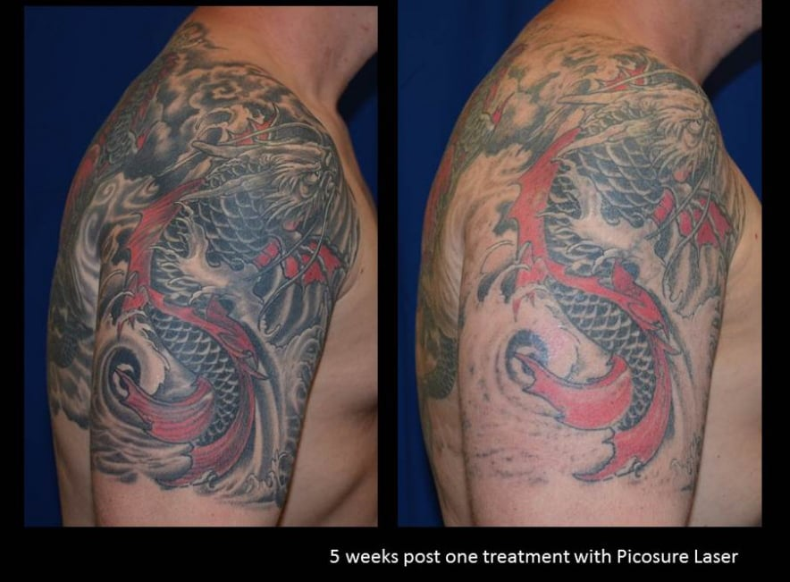 1 treatment with the picosure tattoo removal laser yelp for Picosure tattoo removal maryland