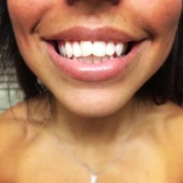 tandblekning stockholm brilliant smile