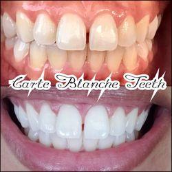 Top 10 Best Zoom Teeth Whitening In Los Angeles Ca Last Updated