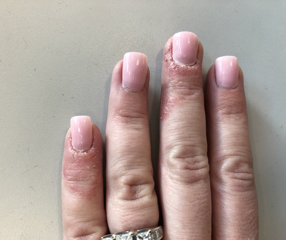 Middle and little finger with a BAD infection - Yelp