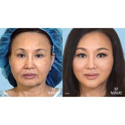 Photo of Wave Plastic Surgery   Laser Center - Los Angeles, CA, United  States 440cb2d9a9