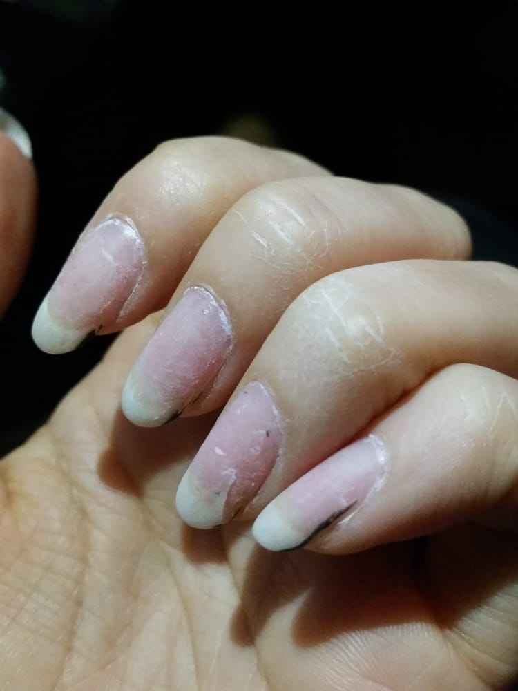 They lifted my nail bed on my ring finger. It eventually bled by the ...