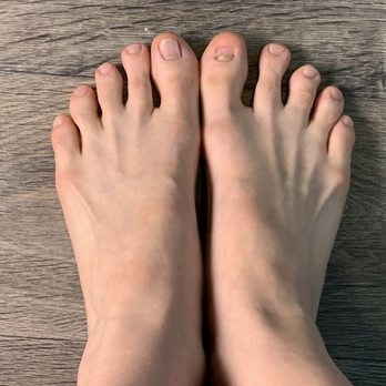 Photo of Lydian Flash - Austin, TX, United States. Before toenail reconstruction