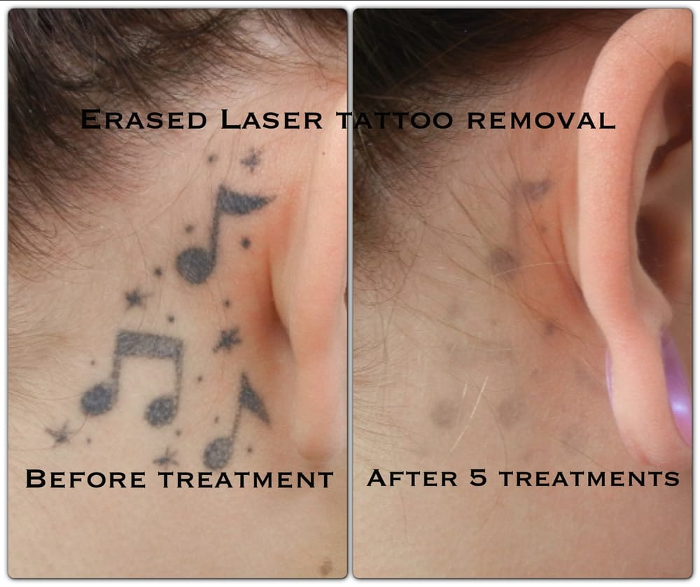 After the 5th treatment erased tattoo removal las vegas for Can you get a tattoo before surgery