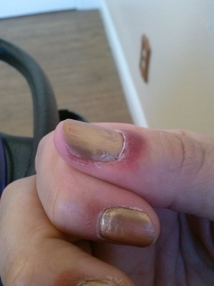 Infection I recieved from Love Nails in Chino, CA. (01.28.16) - Yelp