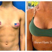 Ghurani Plastic Surgery - 30 Photos - Cosmetic Surgeons - 7300 N