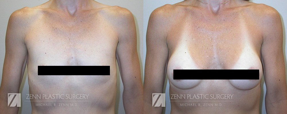 Photo of Zenn Plastic Surgery - Raleigh, NC, United States. 36 year old