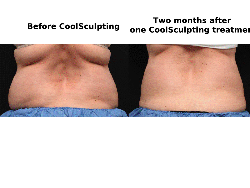 coolsculpting for love handles and back fat pad yelp