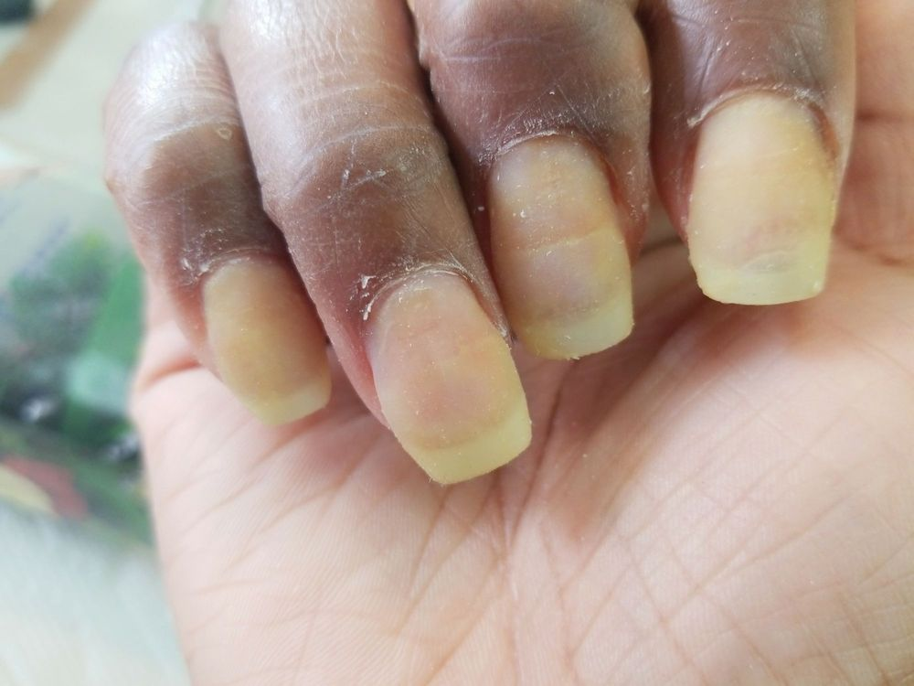 Yellowed nails (fresh set) compliments of Suny herself - Yelp
