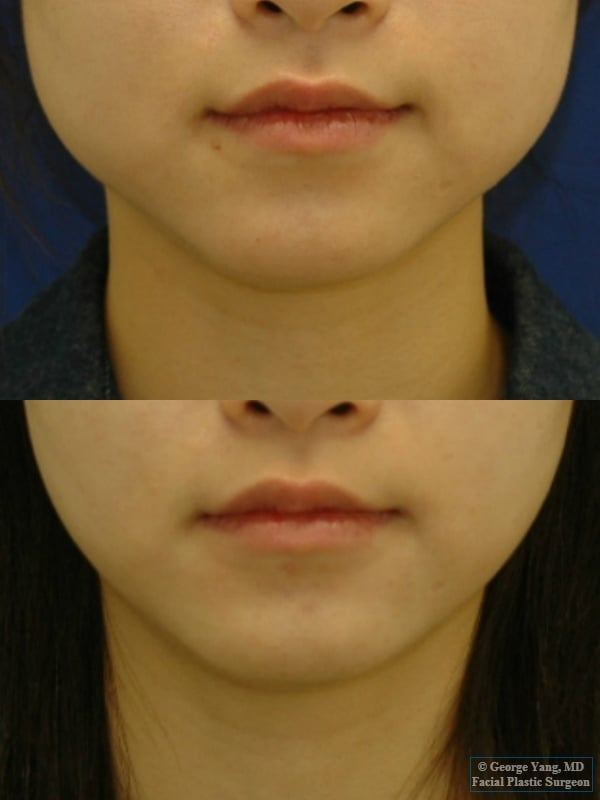 Botox Masseter Reduction For Masseter Hypertrophy And