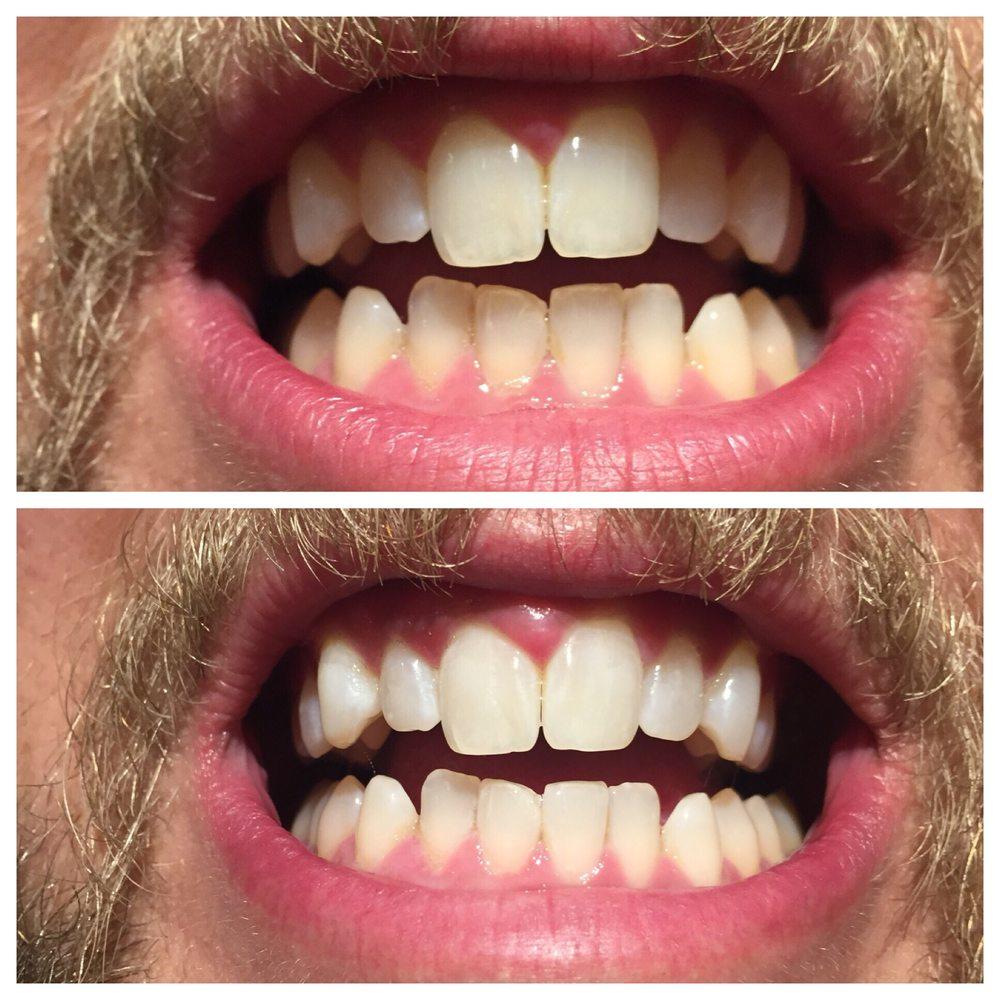 Glow Teeth Whitening: 6000 E Evans Ave 1-011, Denver, CO
