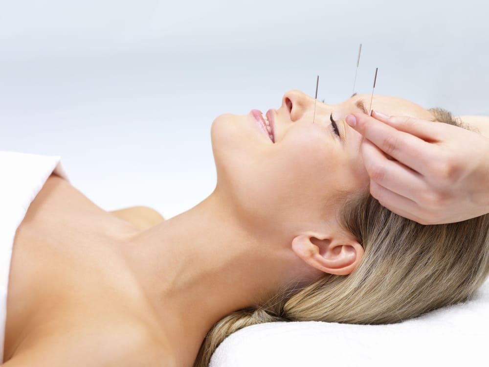 Acupuncture - Yelp