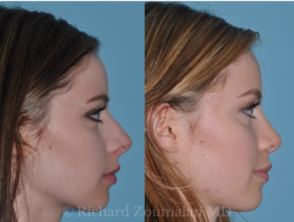 Before and After Rhinoplasty and Septoplasty by Dr  Zoumalan