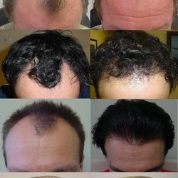 My Hair Transplant Md 55 Photos Cosmetic Surgeons 12707 High