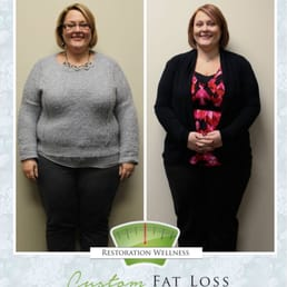 Weight loss per week gastric bypass photo 6