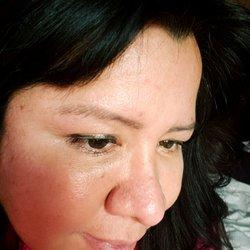 Botox Juvederm Doctor - 870 Pompton Ave, Cedar Grove, NJ
